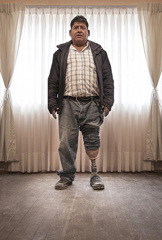 Amputee with prosthetic leg