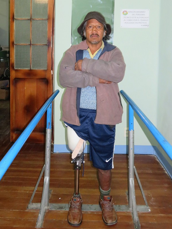 Javier standing on his new prosthetic leg with LIMBS polycentric knee and Shape and Roll SACH foot.